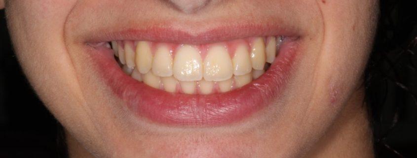 הסרת אבנית - בריאות הפה וטיפול מונע