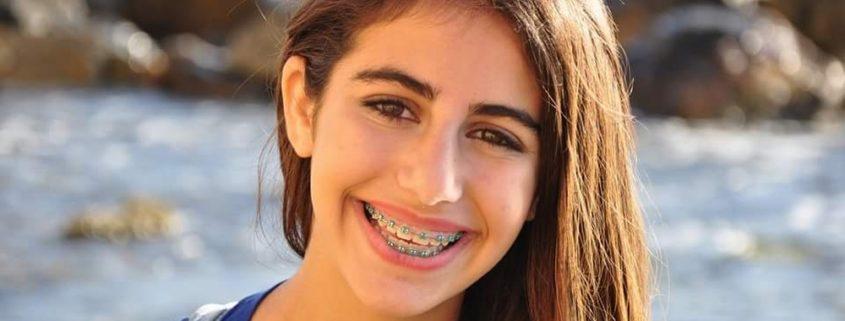 טיפול אורתודונטי, יישור שיניים